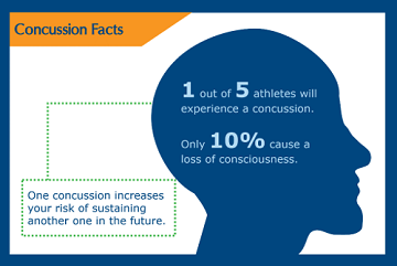 concussion facts